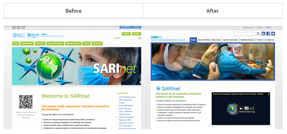 before after sarinet